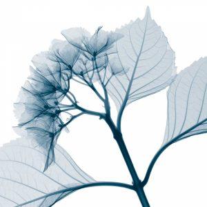 Hydrangeas [Positive] – B